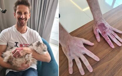 Grosjean mostra le mani senza bende. FOTO
