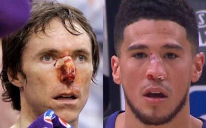 Booker: naso sanguinante come Nash nel 2007. VIDEO