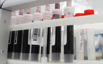 Coronavirus: Marche, due positivi su 578 nuove diagnosi