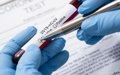 Coronavirus: Marche, 8 positivi in 24ore, ricoveri da 8 a 11