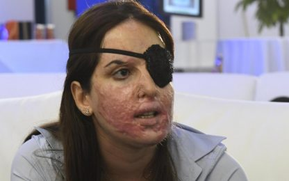 """Gessica Notaro, la Cassazione: """"No a sconti per chi sfregia con acido"""""""