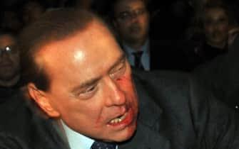 15 - L'allora presidente del Consiglio Silvio Berlusconi con il volto insanguinato dopo esser stato colpito da una statuetta del duomo il 13 dicembre 2009 a Milano.  ANSA/LIVIO ANTICOLI