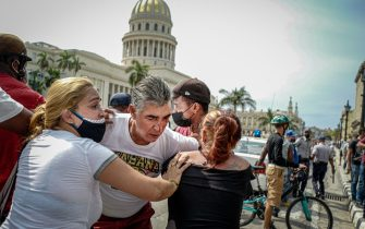 """A man injured in the eye is seen during a demonstration against the government of Cuban President Miguel Diaz-Canel in Havana, on July 11, 2021. - Thousands of Cubans took part in rare protests Sunday against the communist government, marching through a town chanting """"Down with the dictatorship"""" and """"We want liberty."""" (Photo by ADALBERTO ROQUE / AFP) (Photo by ADALBERTO ROQUE/AFP via Getty Images)"""