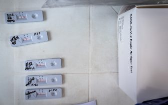 COVID-19 rapid tests for the novel coronavirus disease as people in Ragonvalia - Norte de Santander, Colombia get rapid tests and the Jansen Johnson & Johnson novel Coronavirus (COVID-19) on July 7, 2021.
