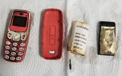 Ingoia un Nokia 3310, salvato da una equipe di medici