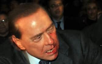 Il presidente del Consiglio Silvio Berlusconi con il volto insanguinato dopo esser stato colpito da una statuetta del duomo il 13 dicembre 2009 a Milano.  ANSA/LIVIO ANTICOLI