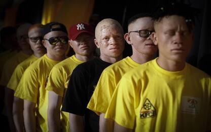 Giornata mondiale dell'albinismo 2020, tutto quello che c'è da sapere