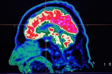 Cervello, sviluppata nuova tecnica ottica per indagine macroscopica