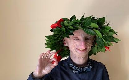 Progeria, Sammy Basso si è laureato per la seconda volta