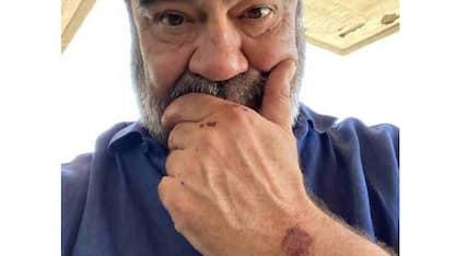 Francesco Pannofino, incidente in moto per l'attore di Boris