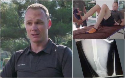 "Froome e l'infortunio: ""Sembrava Grey's Anatomy"""