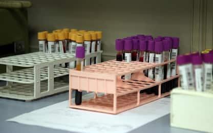 Covid Piemonte: 600 casi su oltre 10mila tamponi
