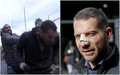 Giornalista aggredito a Ostia, chiesto rinvio a giudizio per Spada