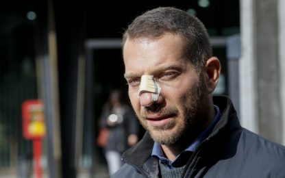 Aggressione al giornalista Piervincenzi: denunciati tre pescaresi