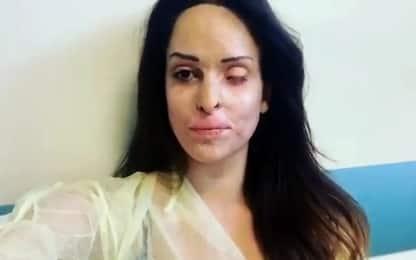 """Gessica Notaro mostra l'occhio ferito: """"Vicini alla svolta"""". VIDEO"""