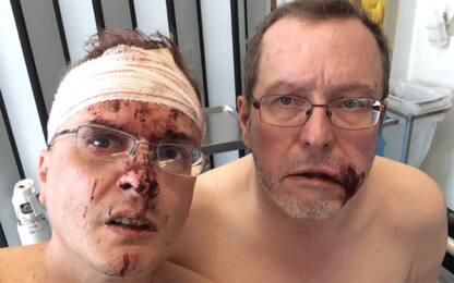 Coppia gay aggredita in Belgio a Sky Tg24: paura che ci uccidano