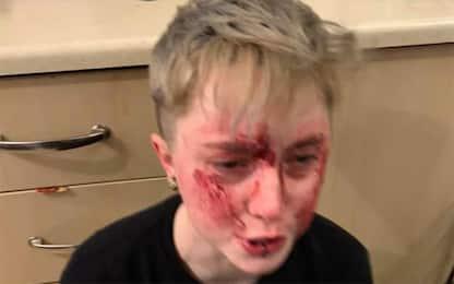 """Regno Unito, 20enne denuncia: """"Aggredita 6 volte perché lesbica"""""""