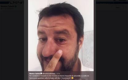 """Salvini ha l'orzaiolo: l'ironia di Burioni sui """"rimedi della nonna"""""""