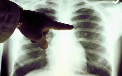 Tumore al polmone, con immuno-chemioterapia migliora sopravvivenza