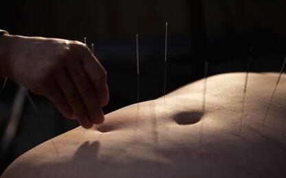L'agopuntura possibile alternativa a ormoni per sintomi menopausa