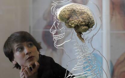 Gli effetti dell'Lsd aiutano a capire come funziona il cervello