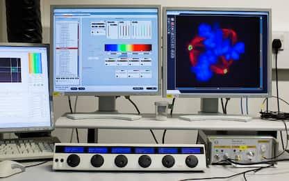Scoperte cellule immunitarie che riparano le fibre nervose. Lo studio