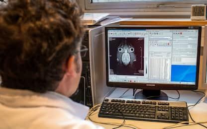 Parkinson, i danni cerebrali dietro i comportamenti dei malati