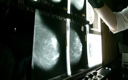 """Tumori: mutazioni dei """"geni Jolie"""" pericolose anche per gli uomini"""