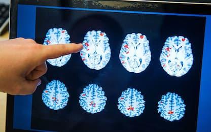 La sedentarietà potrebbe colpire le aree della memoria nel cervello