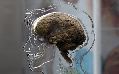 """Cervello, trovato il """"pulsante"""" che accende il senso di responsabilità"""