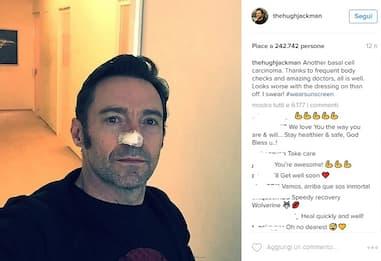 """Hugh Jackman, operato ancora: cancro al naso per """"Wolverine"""""""