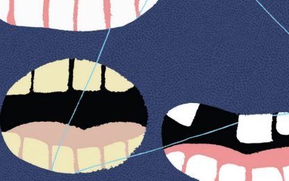 """Come sopravvivere al dentista: """"Alla radice"""" di Miika Nousiainen"""