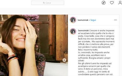 Kasia Smutniak mostra la sua vitiligine su Instagram